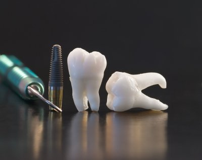 dental - implant